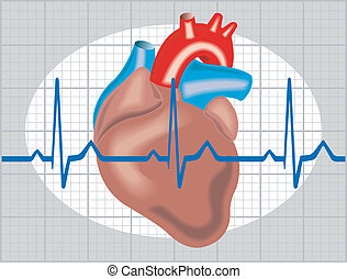 Cardiac arrhythmia - Schematic illustration of cardiac...