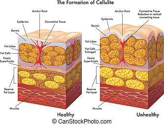 cellulite - medical illustration of the process of formation...