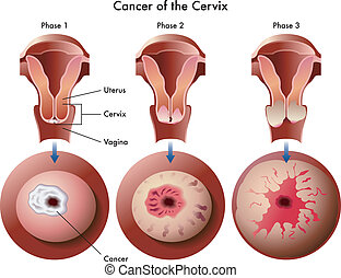 cervical cancer - medical illustration of the effects of the...