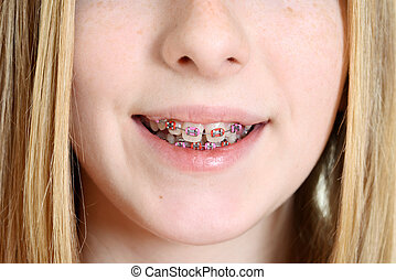Closeup teen girl with braces - Closeup teen girl with...