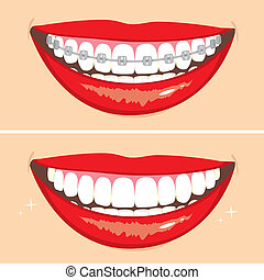 Brakets Smile - Illustration of two happy smiles showing...