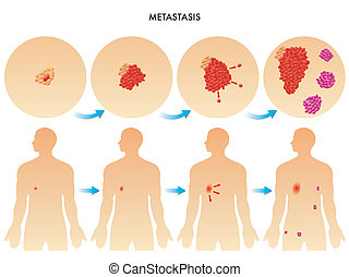 metastasis - medical illustration of the spread of...