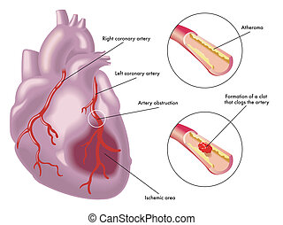 Myocardial infarction - medical illustration of the effects...