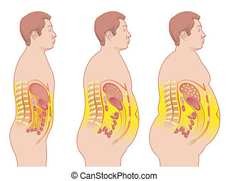 obesity - medical illustration of the consequences of...