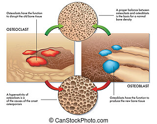 osteoblast and osteoclast - medical illustration of the...