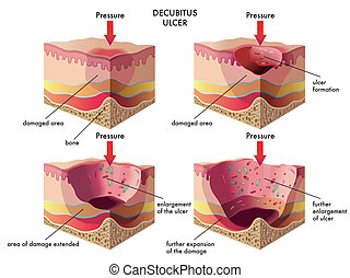 decubitus ulcer - medical illustration of the effects of the...