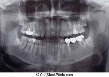 Human Teeth, X-Ray - The Human Teeth, X-Ray