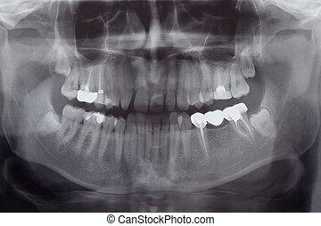 humano, dientes, radiografía