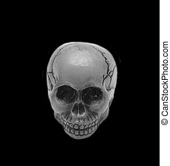 skull, black and white, black background