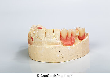 A partial denture mounted on a plaster study model and...