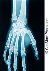 手, X光