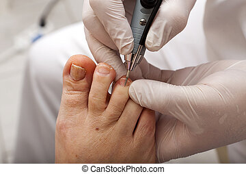 Edit toenail with grinder - A chiropodist taking care of...