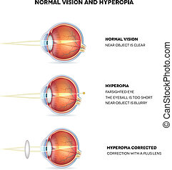 Hyperopia and normal vision. Hyperopia is being farsighted....