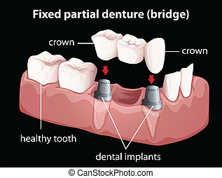 A fixed partial denture - Illustration of a fixed partial...