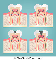 tooth anatomy and damage, cut teeth in the gums vector...