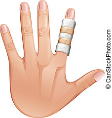 A first aid treatment on a finger - Illustration of a first...