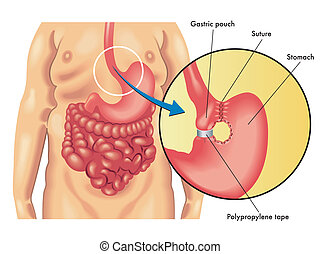 vertical banded gastroplasty - medical illustration of a...