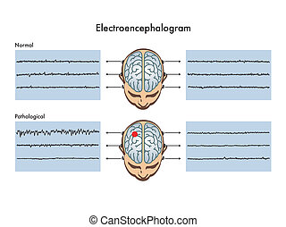 electroencephalogram - medical illustration that shows the...
