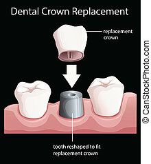 A dental crown replacement - Illustration of a dental crown...