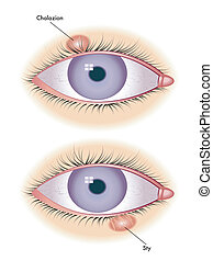 chalazion & sty - medical illustration of symptoms of...