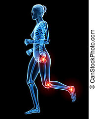 Painful joints - Woman with painful joints