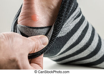 Man with a blister on his heel lifting down his sock to...