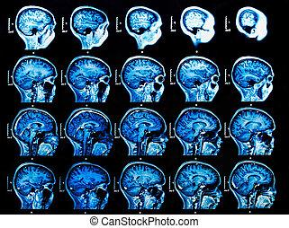 mri, cerebro, exploración