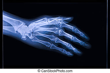 X-ray of Hand and fingers - X-ray of human Hand and fingers...