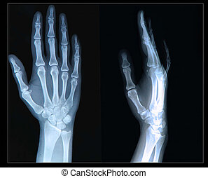 Xray of Hand/ fingers - Xray of human  Hand/ fingers