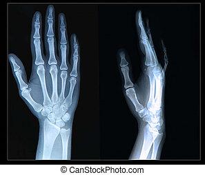 Xray of Hand/ fingers - Xray of human  Hand/ fingers
