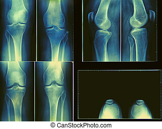 knee x-ray - x-ray film of knee
