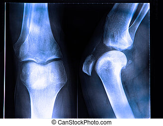 X-Ray image if the human knee - Anterior cruciate ligament...