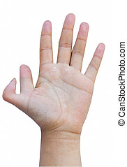 six-fingers hand dermatoses in white background