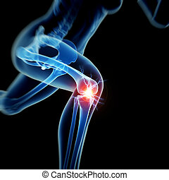 Knee pain - Woman having acute pain in the knee