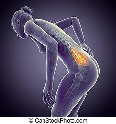 Backache - A woman having acute pain in the back