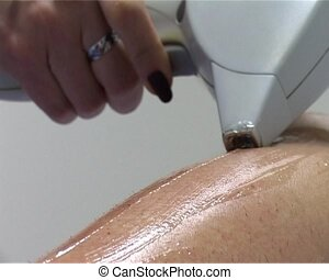 laser epilation - the close-up process of the laser...