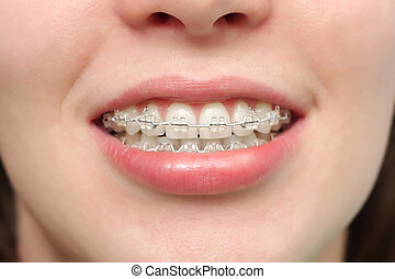 Girl smiles with braces - The girl smiles with braces system...