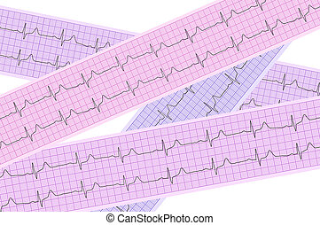 Heart analysis, electrocardiogram graph ECG