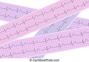 corazón, análisis, electrocardiograma,...
