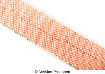 ECG print - Close up of ECG Graph details