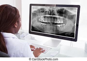 Female dentist examining jaw Xray on computer in clinic -...