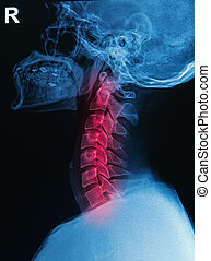 X-ray human skull and spine ( cervical spine ) show cervical injury
