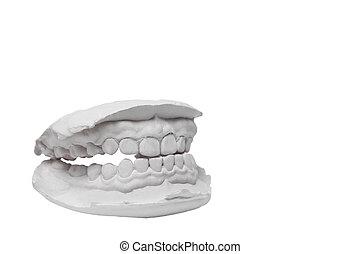 模具, 人類, 牙齒