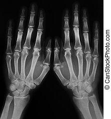 x-ray of hands - black and white photo of x-ray film with...