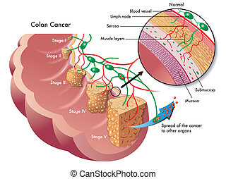 colon cancer - medical illustration of the different stages...
