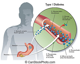 type 1 diabetes - medical illustration of the symptoms of...