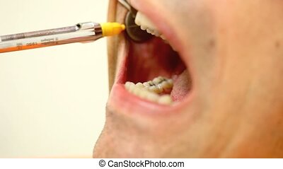 syringe of dental anesthesia in the patients mouth