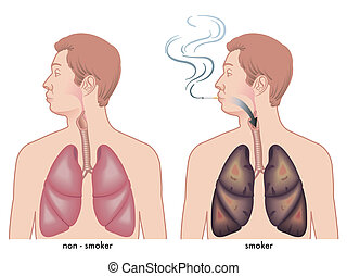 Smoking - illustration of the effects of the smoke