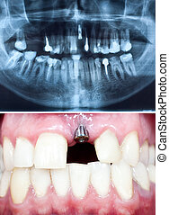 dental implant - A macro shot of dental implant in the oral...