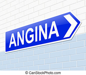 Angina concept - Illustration depicting a sign with an...